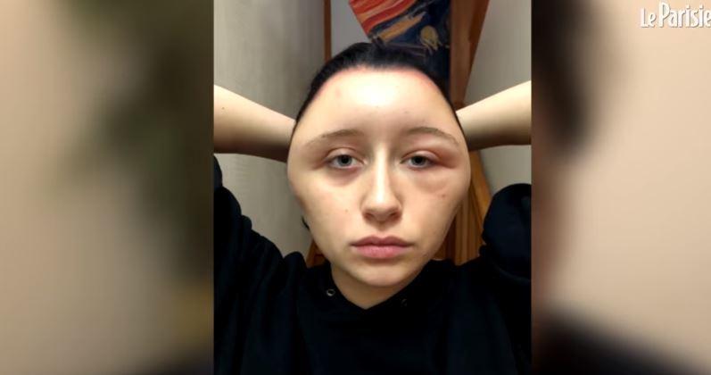 Video: Su cabeza se deformó por ser alérgica los tintes de pelo