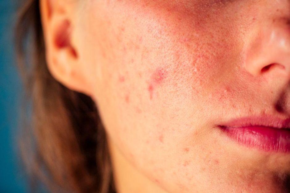 Las 5 mejores cremas para eliminar las espinillas de tu rostro