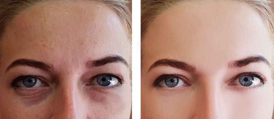 Los 3 mejores productos de belleza para eliminar las ojeras negras