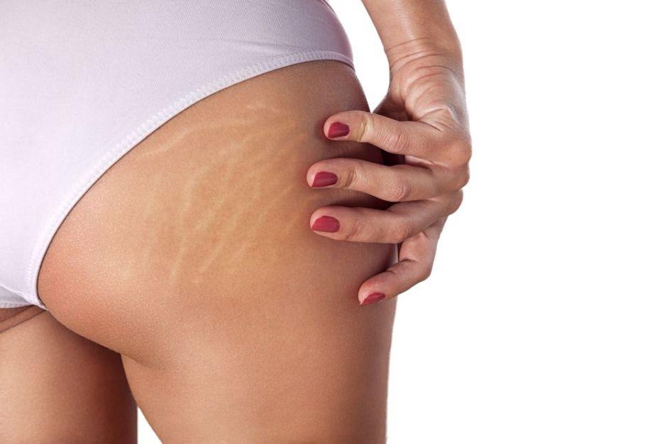 ¿Cuál es la mejor forma de eliminar las estrías de tu cuerpo?