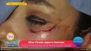 Actriz muestra las heridas que supuestamente le provocó su violador, un actor de Televisa