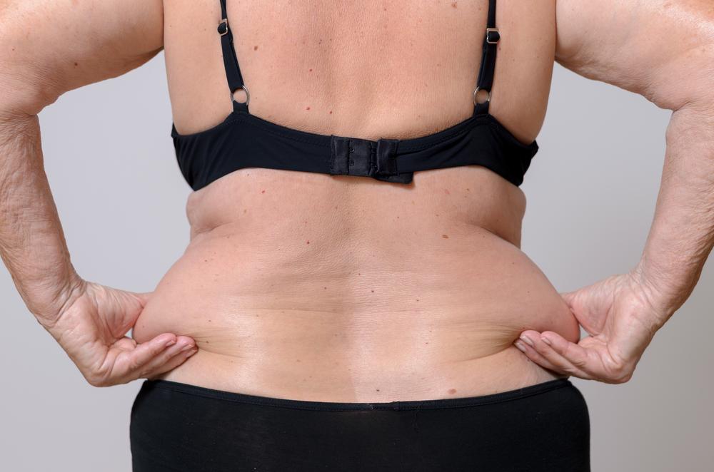 ¿Acumulas grasa en la cadera o en el estómago? La culpa es de tus genes