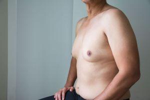 ¿Por qué la ginecomastia o crecimiento de senos en hombres afecta al 3% de la población?