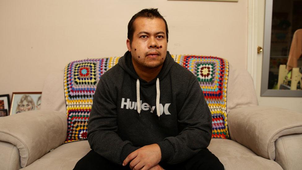 James Myers, el australiano que vive con tres balas en la cabeza