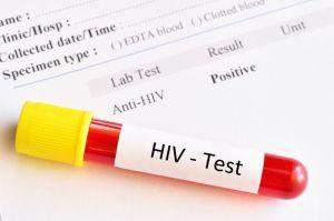 HIV o SIDA: Cuál es la mejor forma de prevenirlo