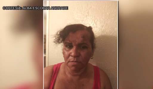 Supuesta víctima de Lady Frijoles muestra su rostro herido tras trifulca en apartamento de Dallas, Texas