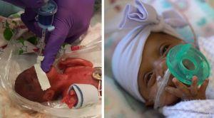 Video: La bebé más pequeña del mundo va a casa tras cinco meses en el hospital