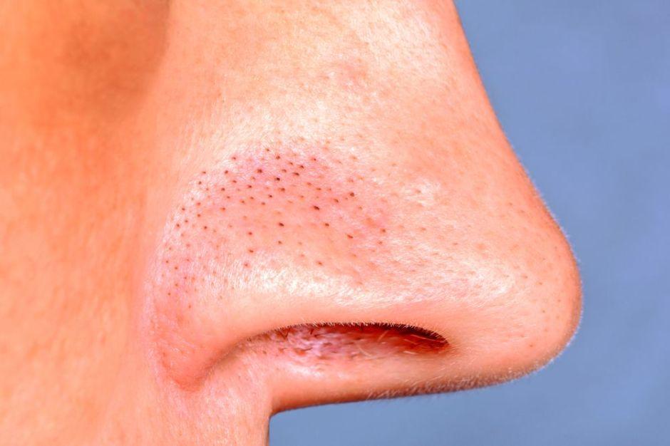 ¿Cúal es la mejor manera y la más efectiva de remover los puntos negros de la nariz?