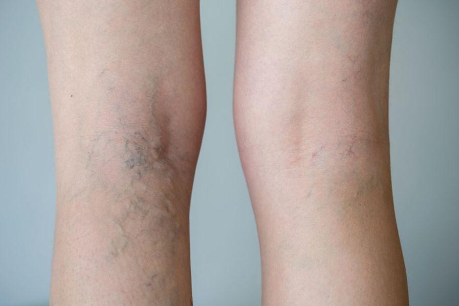 Las 3 mejores cremas para eliminar las varices de tus piernas