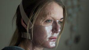 Vicky Knight, la mujer desfigurada por el fuego que se volvió actriz de cine gracias a sus cicatrices