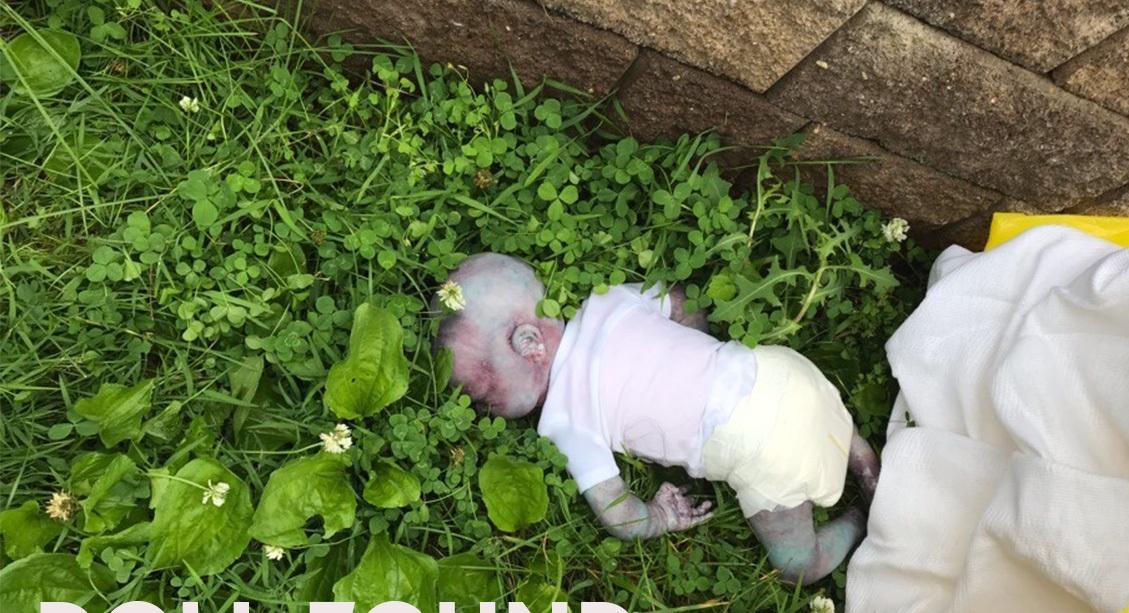 El supuesto bebé muerto con hematomas