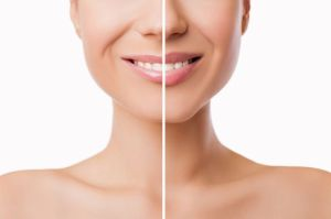¿Cuáles son los tratamientos adecuados si deseas aumentar el tamaño de tus labios?