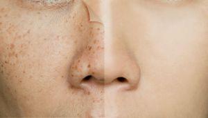 6 remedios caseros para eliminar las manchas en la piel
