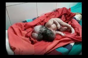 VIDEO: Nace una bebé con tres cabezas