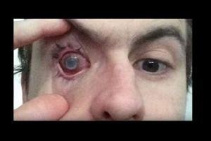 Un parásito se metió en su lente de contacto y así quedó ciego de un ojo