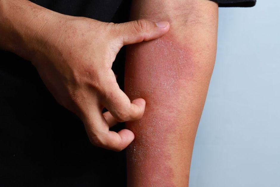 ¿Cómo puedo curar el eczema en la piel?