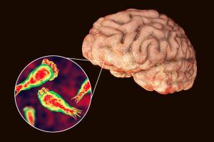 Ameba come-cerebros mata a un hombre que se contagió en un parque acuático