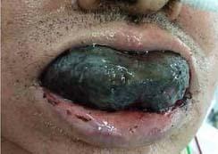 Así se le inflamó la lengua por una terrible enfermedad