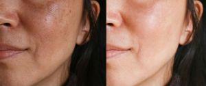 ¿Aparición de manchas marrones en la piel? Conoce el tratamiento para el melasma