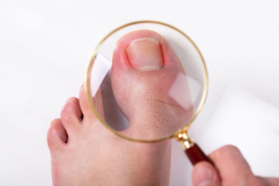 Los 3 mejores productos que te ayudarán a curar y prevenir las uñas enterradas