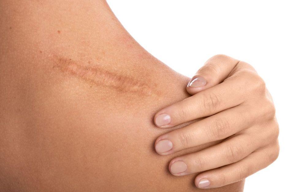 ¿Cómo puedo eliminar las cicatrices de mi piel?