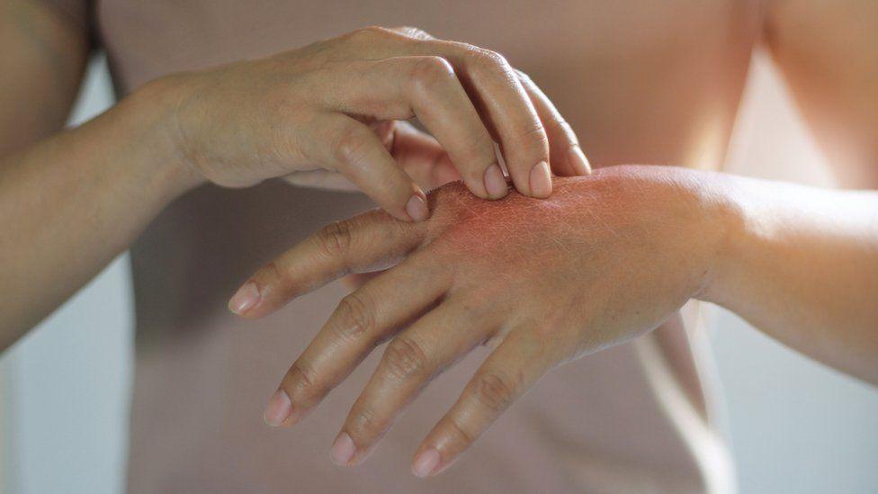La psoriasis es una enfermedad inflamatoria crónica.