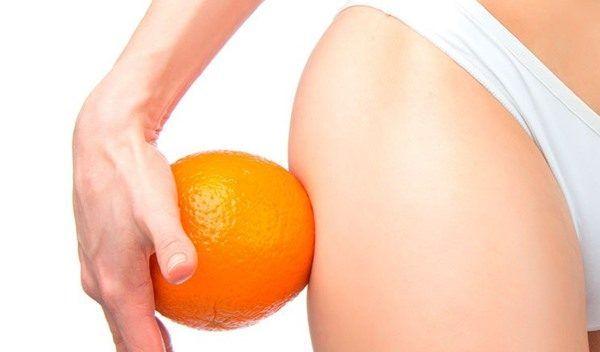 Cómo combatir la celulitis con tratamientos estéticos