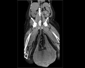 Los testículos se le hincharon al tamaño de un balón debido a una condición extraña