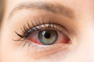 Súper efectivo remedio casero para combatir la conjuntivitis