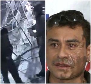 Arrestan a sospechoso de atacar a peruano con ácido en el rostro en exterior de restaurante en Milwaukee