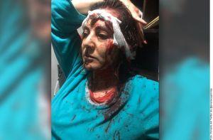 México: hija de Abril Pérez, recuerda con imágenes fuertes a su madre, quien fue asesinada a sangre fría