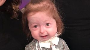 La niña de 2 años con una condición única que acelera su envejecimiento