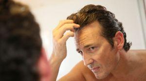 Por qué la biotina es la mejor vitamina para combatir la alopecia y caída del cabello