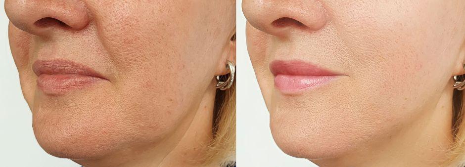 ¿Cuáles son las mejores cremas, sueros y gel que ayudan a lograr el rejuvenecimiento facial?