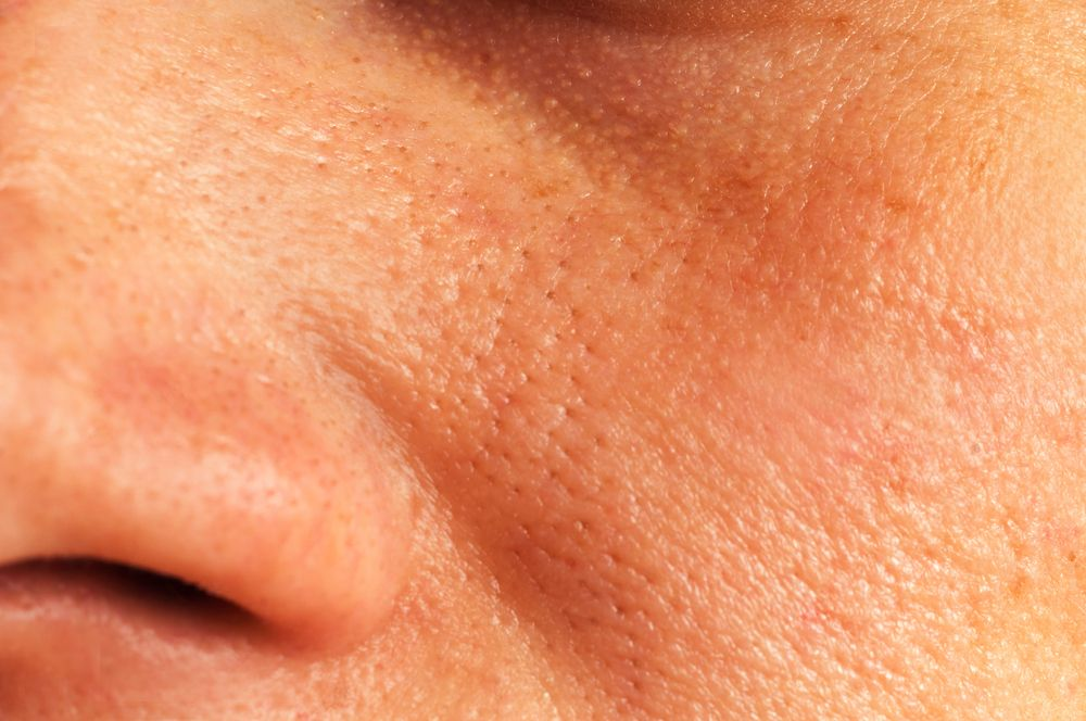 ¿Cómo se realiza la cirugía para tratar el cáncer de piel?