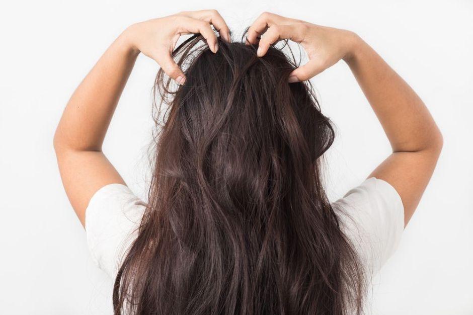 3 productos para quitar la comezón e irritación en el cuero cabelludo