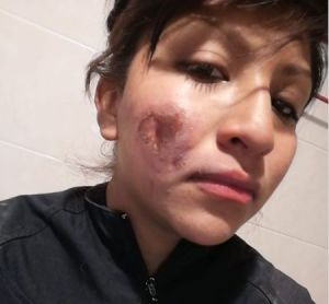 Encapuchada quemó el rostro de mujer policía durante marcha en la CDMX