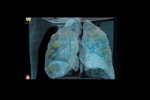 Un VIDEO de realidad virtual muestra cómo el coronavirus daña los pulmones en unos cuantos días