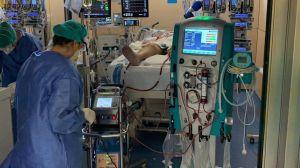 Respiración extracorpórea: en qué consiste este novedoso tratamiento que ha salvado a decenas de personas con coronavirus