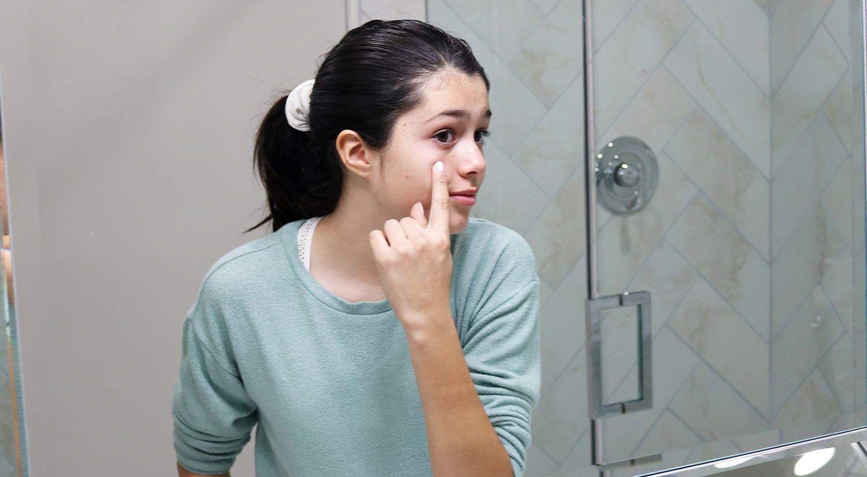 acné facial