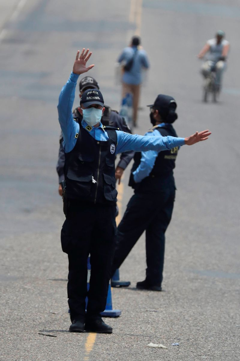 Honduras: Hombre es detenido por fracturar la mano a un agente de policía