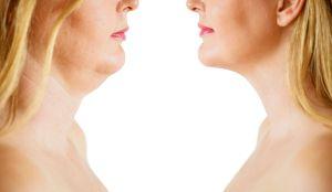 Cremas reafirmantes: Las mejores para disminuir la papada