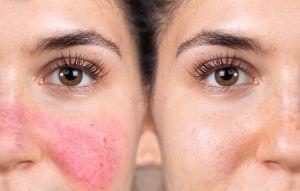 3 productos con aceite de marula antiedad para pieles sensibles y con rosácea