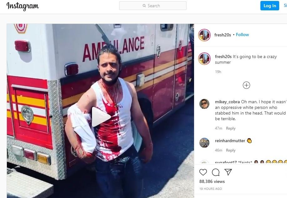 Insólito video: hispano sangrando posa con un cuchillo clavado en la cabeza en Nueva York