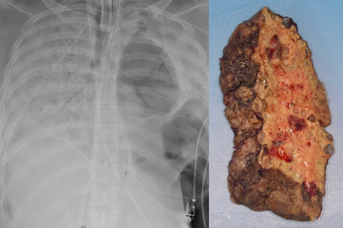 Hispana paciente de coronavirus recibe doble transplante de pulmón