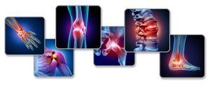 ¿Qué es, cómo cuidarte, y cuáles son los síntomas de la Fibromialgia?