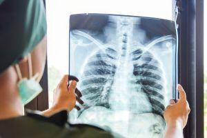 ¿Qué factores llevan a padecer fibrosis pulmonar?