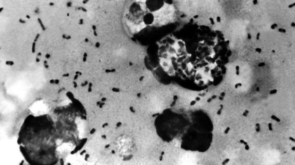 Región de China declara alerta preventiva por un caso de peste bubónica