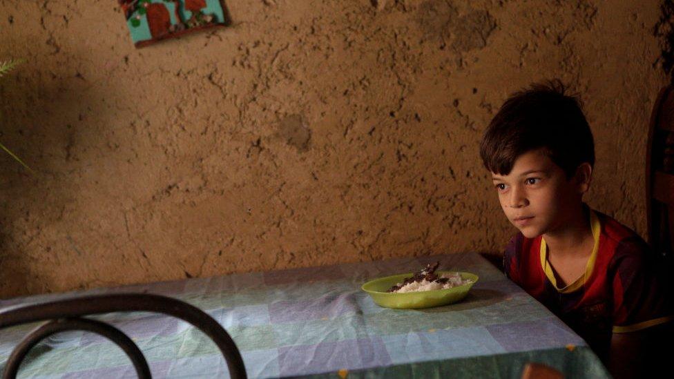 El 30% de los niños venezolanos menores de 5 años padecen de desnutrición crónica.