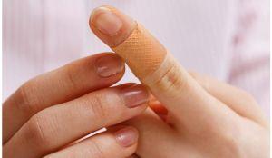 Los 5 mejores productos para eliminar las verrugas de la piel en tus manos